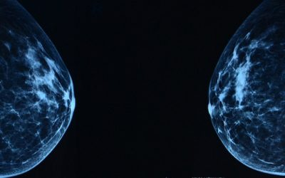 Preventing unnecessary breast cancer treatment
